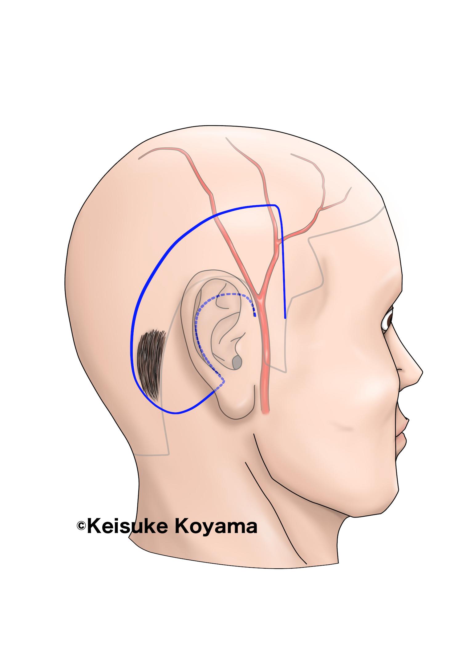 論文用シェーマ・小山慶介・Keisuke Koyama