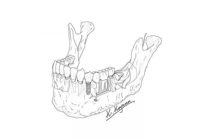 下顎骨のイラスト作成過程・絵を描く口腔外科医の宣材イラスト