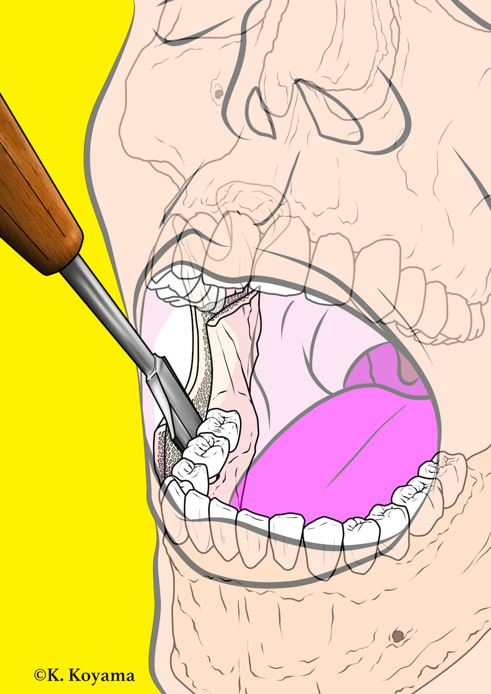 小山慶介 絵を描く口腔外科医 イラスト