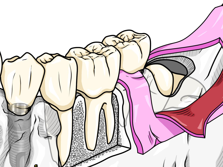 臼歯部アップ 小山慶介