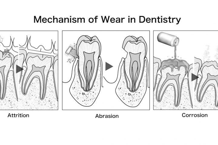 イラスト提供実績・論文用イラスト・雑誌Japanese Dental Science Reviewに掲載・摩耗メカニズムのシェーマ