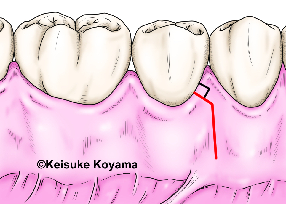 小山慶介 keisuke koyama