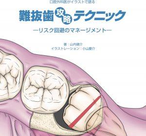 新刊・難抜歯攻略テクニック本の内容紹介
