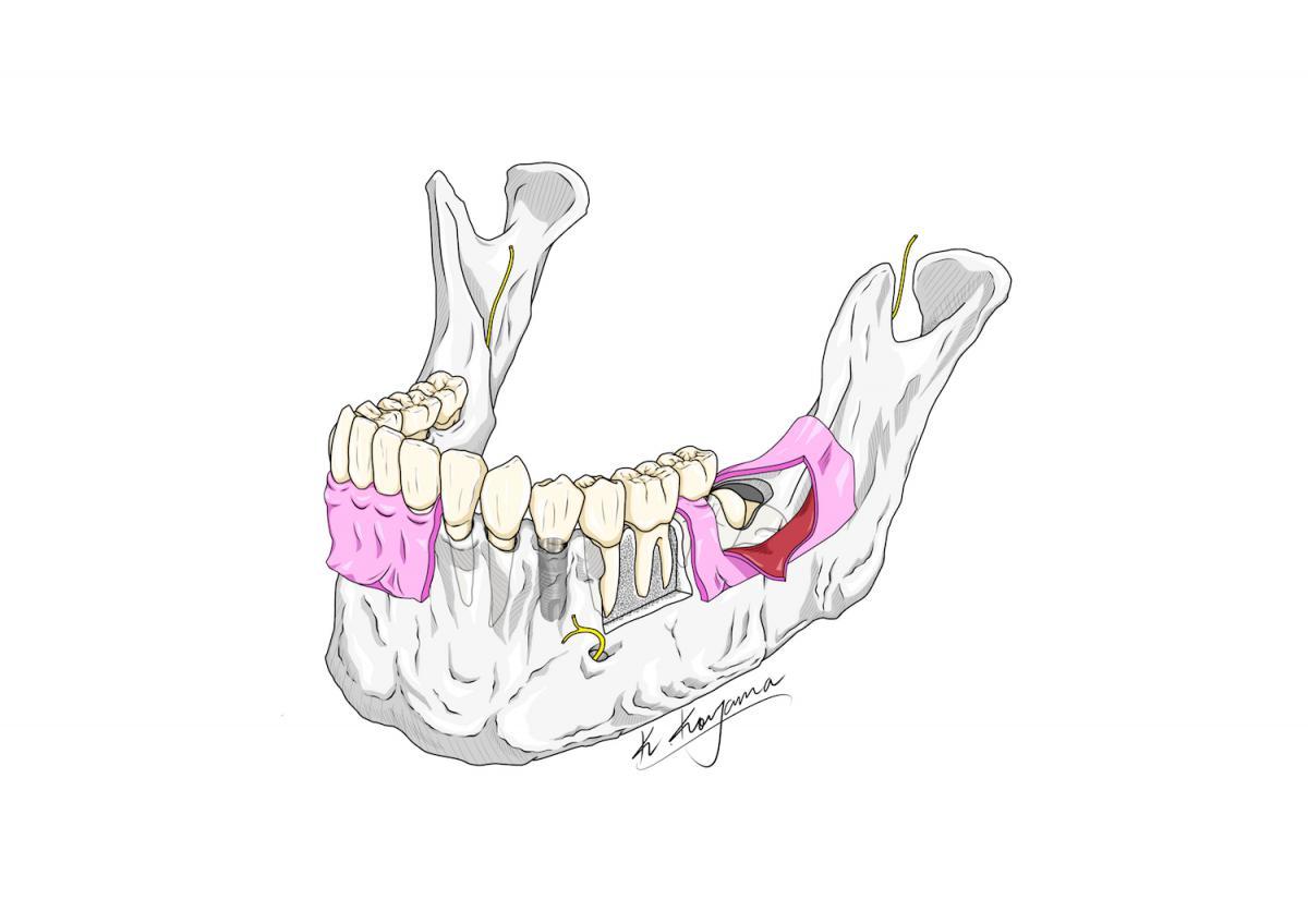 下顎骨イラスト